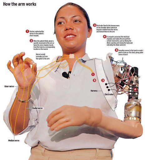 A good diagram of a prosthetic limb and detail about how the prosthetic limb transmits sensation to the brain.