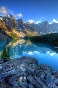 Moraine Lake by Matthew Hahnel ~ Banff National Park, Alberta, Canada*