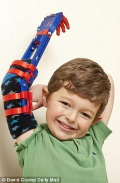 E-Nable Designs Young UK Child a new Superhero-inspired 3D Printed Arm | FILACART BLOG | 3D Printing MegaStore