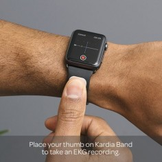 AliveCor unveils Kardia Band, a medical-grade EKG band for Apple Watch